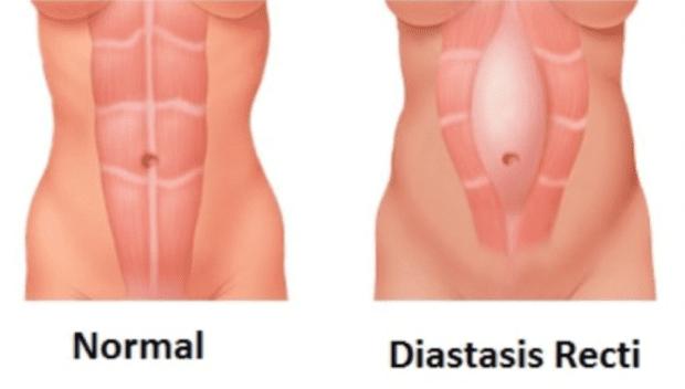 Diastasis Abdominal - Clínicas Aleria